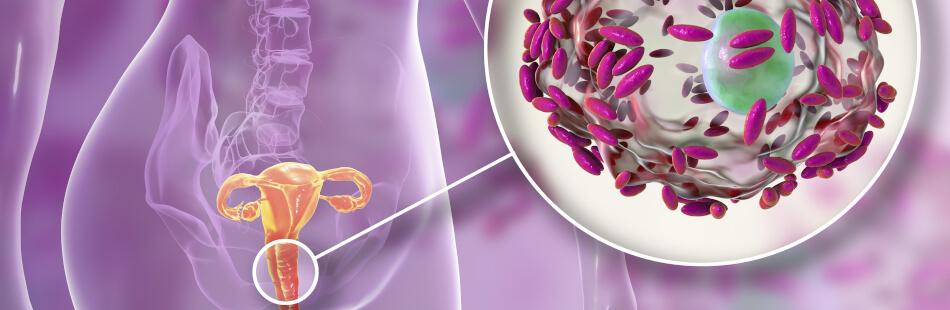bakterielle-vaginose-zb2