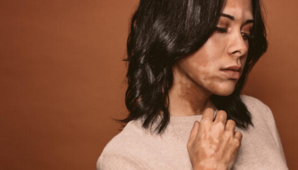 vitiligo-zb1